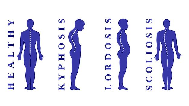 Doenças da coluna vertebral. escoliose, lordose, cifose. defeitos de postura corporal. curvatura nas costas. tipos de deformidade da coluna vertebral. infográfico de doenças médicas. sintoma diagnóstico. ilustração vetorial.