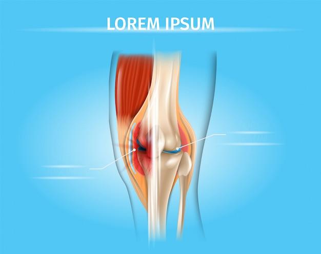 Dor no joelho e tratamento de artrite vector chart