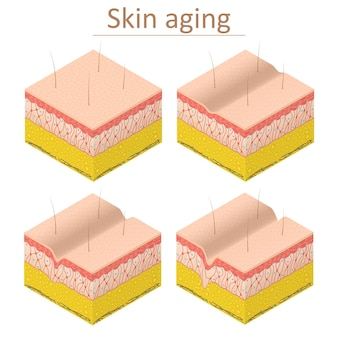 Envelhecimento da pele definir vista isométrica normal e epiderme de rugas para pôster e cartão. ilustração vetorial