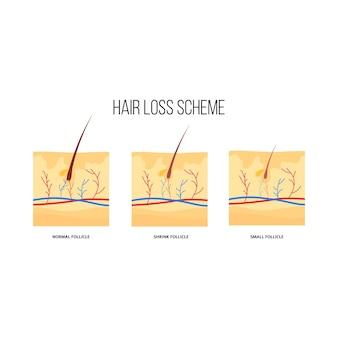 Esquema de perda de cabelo humano plano. diagrama gráfico de folículos capilares