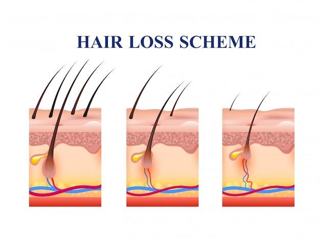 Esquema de perda de cabelo