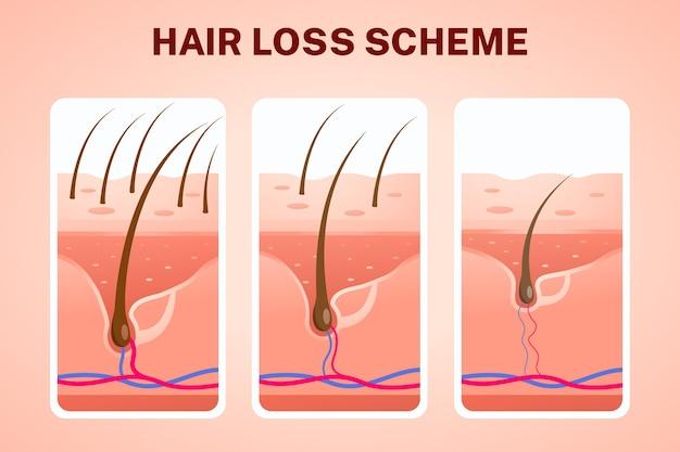 Esquema de queda de cabelo gradiente