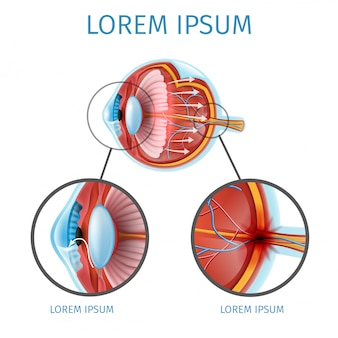 Esquema de vetor de glaucoma