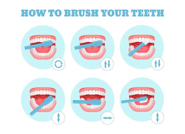 Esquema passo a passo, instruções sobre como escovar os dentes corretamente.
