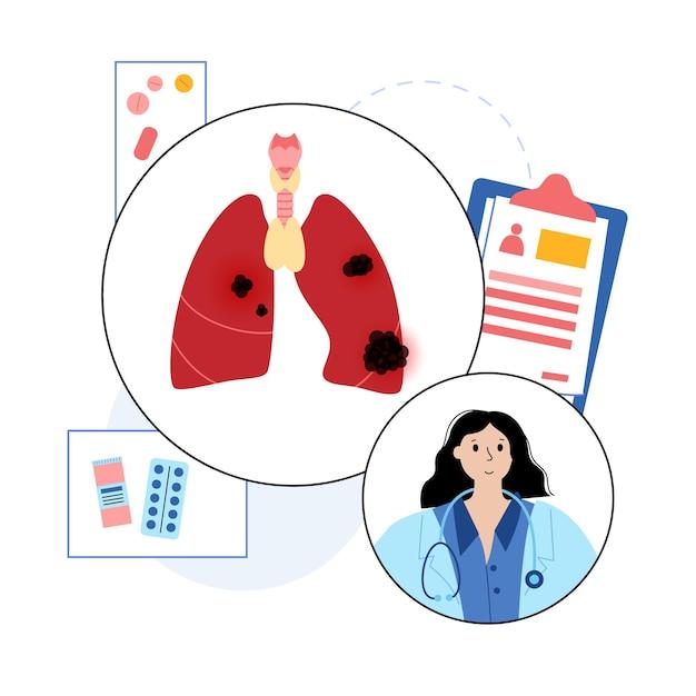 Estágio do câncer de pulmão. clínica de pneumologia. danos no sistema respiratório, tumor e inchaço