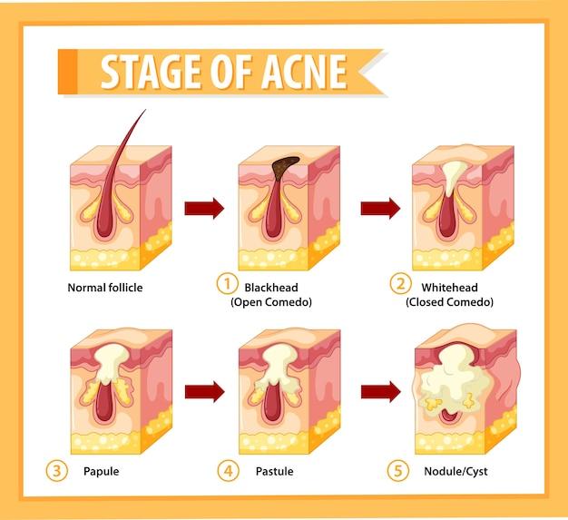Estágios da anatomia da acne da pele