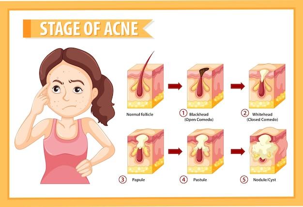 Estágios da anatomia da acne na pele com uma mulher fazendo pose estressante