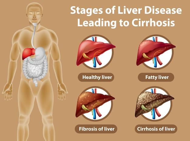 Estágios da doença hepática que levam à cirrose