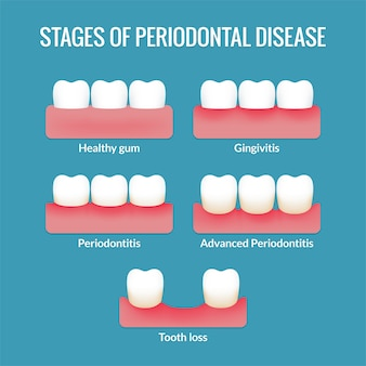 Estágios da doença periodontal de gengivas saudáveis a gengivite, periodontite e perda de dente. gráfico infográfico médico moderno.