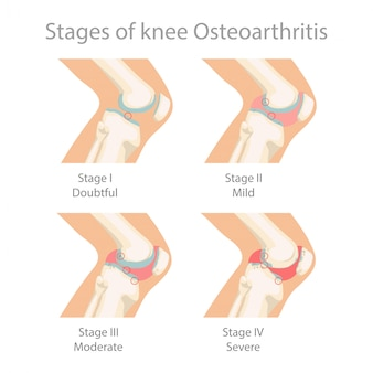 Estágios da osteoartrite do joelho.