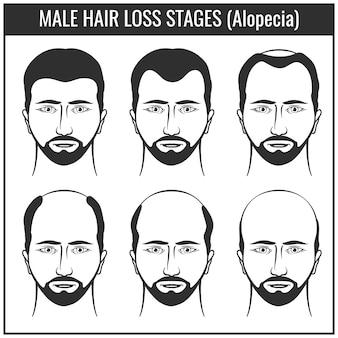 Estágios da perda de cabelo e tipos de calvície