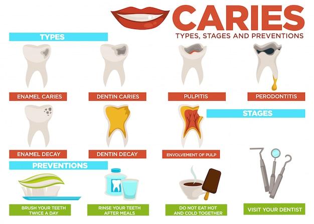 Estágios de cárie e cartaz de prevenção com texto
