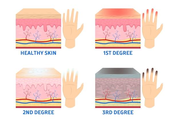 Estágios de congelamento. dedo congelado, hipotermia na estação fria