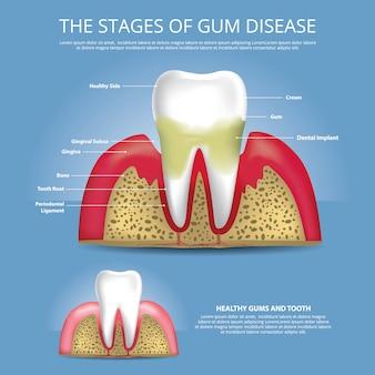 Estágios de dentes humanos de ilustração de doença de goma
