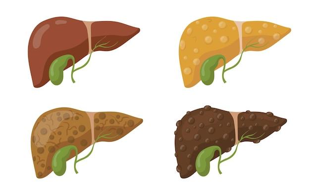 Estágios de doença do conjunto plano de fígado humano