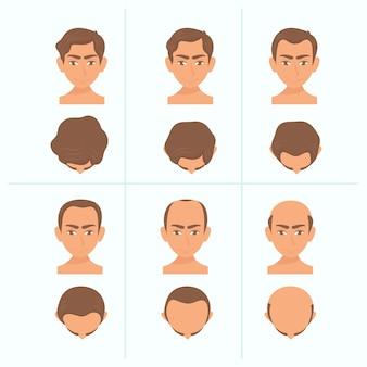 Estágios de queda de cabelo desenhados à mão plana