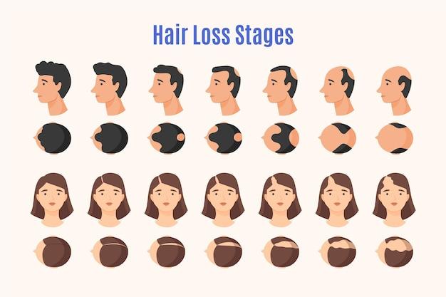 Estágios de queda de cabelo desenhados à mão