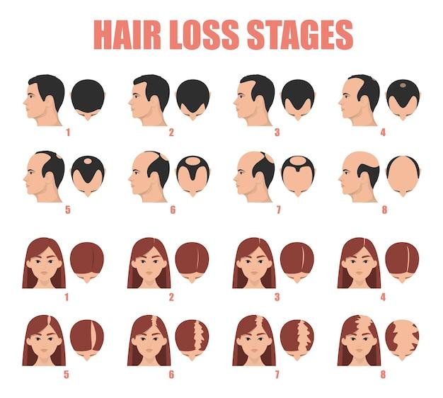 Estágios de queda de cabelo na alopecia feminina e masculina