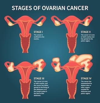 Estágios do câncer de ovário mencionando ovários
