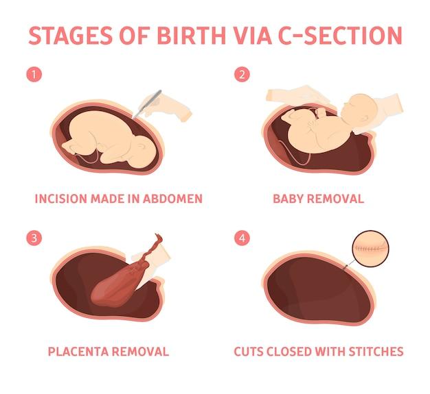 Estágios do nascimento do bebê por cesariana. movimento do feto durante a cesariana. biologia e ginecologia. ilustração