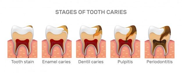 Estrutura de cárie dentária e etapas de colocação total em estilo realista.