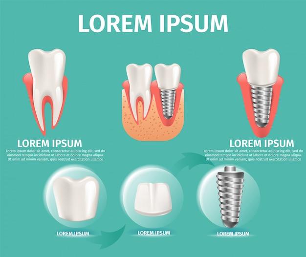 Estrutura de imagem realista do implante dentário