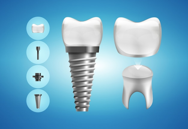 Estrutura do implante dentário e restauração da coroa em estilo realista. .