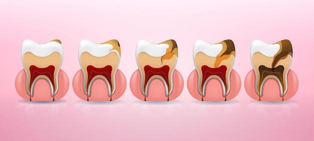 Etapas de colocação da estrutura de cárie dentária em estilo realista.