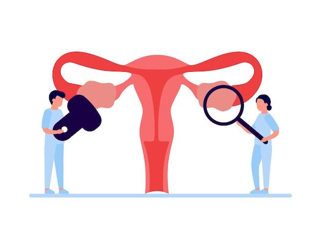 Exame médico do sistema reprodutivo da saúde e doenças da mulher útero e órgão interno do ovário