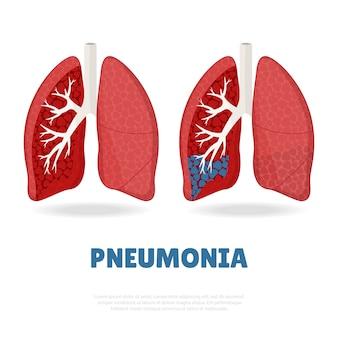 Feliz dia mundial da pneumonia.