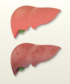 Fígado saudável e um fígado de cirrose