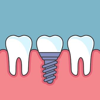 Fileira de dentes com implante dentário - próteses dentárias