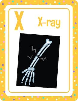 Flashcard do alfabeto com a letra x para raios-x