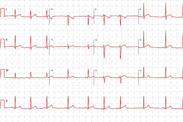 Gráfico de eletrocardiograma humano típico, vermelho com marcas