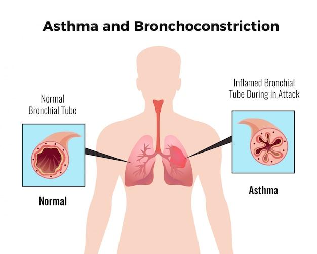 Gráfico educativo médico de ataque de asma com representação plana e brônquica de tubo bronquial normal e inflamado