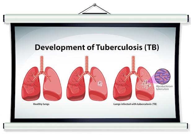 Gráfico mostrando o desenvolvimento da tuberculose