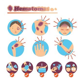 Hematomas no conjunto de círculo.