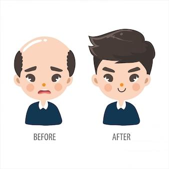 Homem careca sem confiança e homens de cabelos longos parecem mais bonitos.