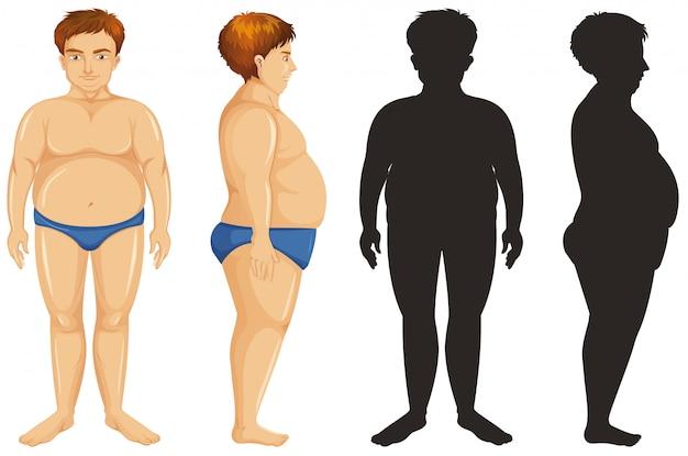 Homem com problema de excesso de peso