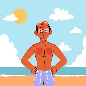Homem de desenho animado com queimadura de sol