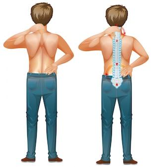 Homem humano com dor nas costas