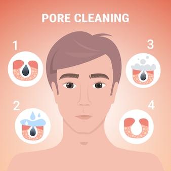 Homem, limpeza, poros, procedimento facial, limpeza, ligado, obstruído, rosto, cuidado pele, passos