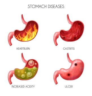 Ícone realista do estômago de órgão interno humano definido pirose, incêndio, distúrbio, ácido gástrico, refluxo, abdominal, bola, náusea, ilustração