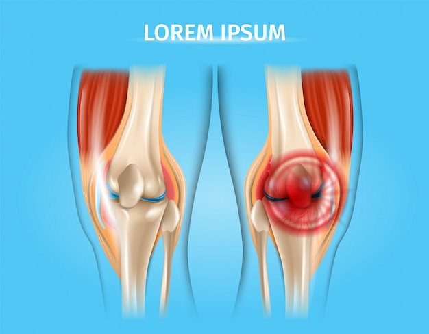 Ilustração anatômica do vetor realista de dor no joelho