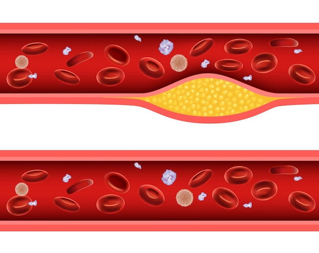 Ilustração da artéria bloqueada com anatomia do colesterol ruim
