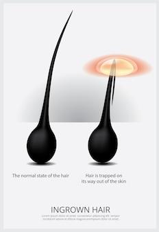 Ilustração da estrutura do cabelo encravado