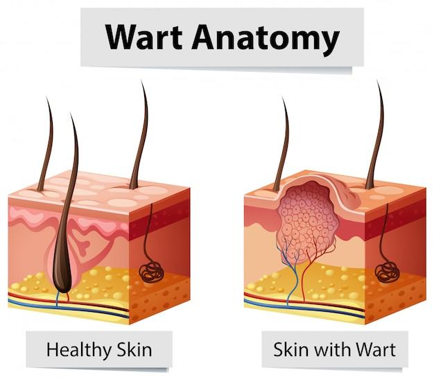 Ilustração de anatomia de pele humana wart