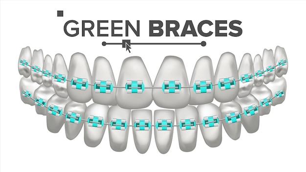 Ilustração de dentes com aparelho de metal
