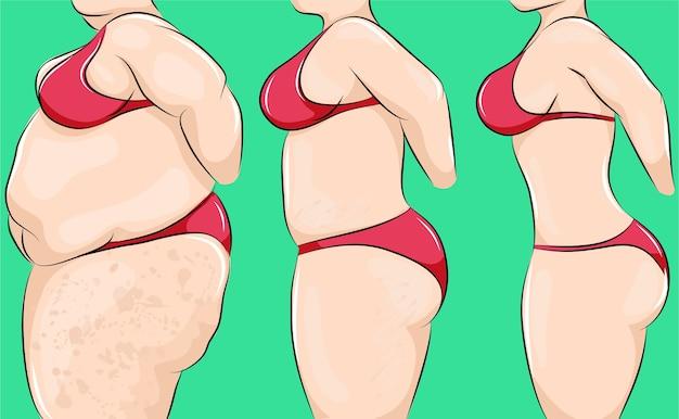 Ilustração de desenho animado do corpo de uma mulher mudando de sobrepeso para magro