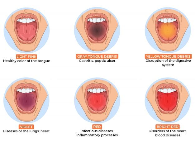 Ilustração de diagnóstico de doenças diferentes pela cor da língua